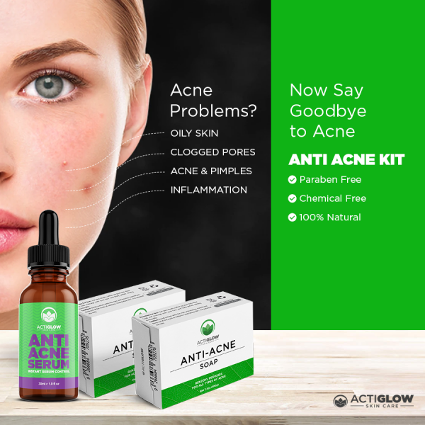 Say goodbye to acne